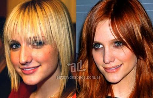 ashlee simpson antes y despues de la cirugia plastica
