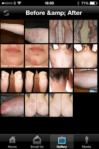 Dermasolve Psoriasis Treatment screenshot 1
