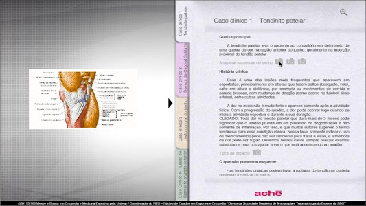 Aché - Ortopedia Joelho screenshot 1