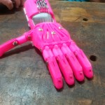 I recently printed a prosthetic hand for a little girl back home, where I grew up….