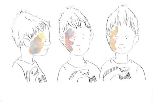Illustration of children's book about visible difference