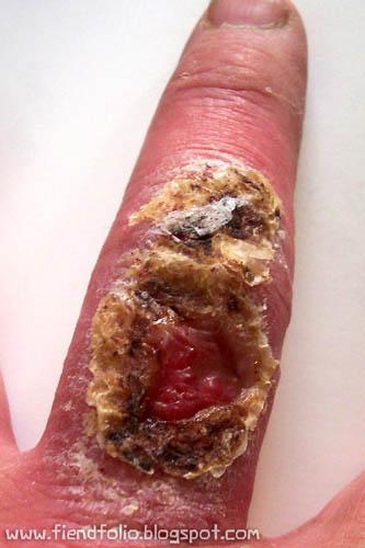 finger spider bite