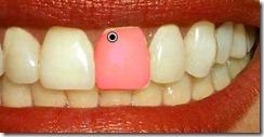 dientes7