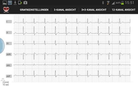 Multi-ECG screenshot 1