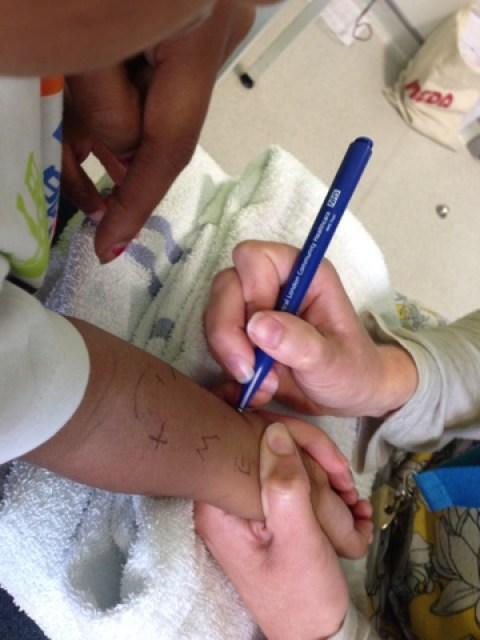 Toddler Hospital Allergy Test