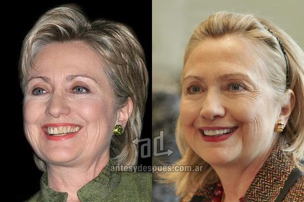 Hillary Clinton y sus nuevos dientes, antes y despues