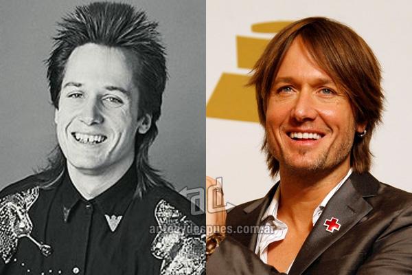 Keith Urban y sus nuevos dientes, antes y despues