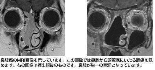 鼻腔 癌 末期