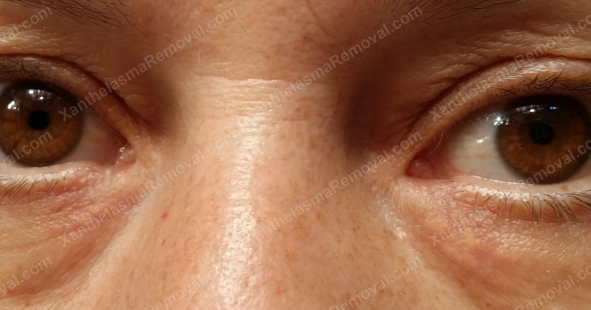Skin Black Best Lightening Skin Cream