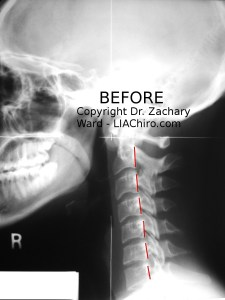 Lateral x ray general spinal pain -upper cervical chiropractic care