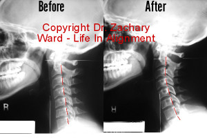 Pre and post xray upper cervical chiropractic care