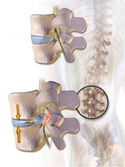 Should I see a chiropractor for sciatica (leg) nerve pain?