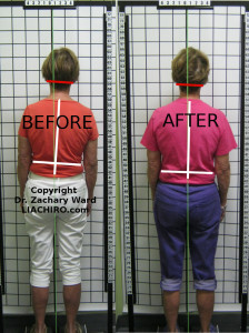 Before and after sciatica posture