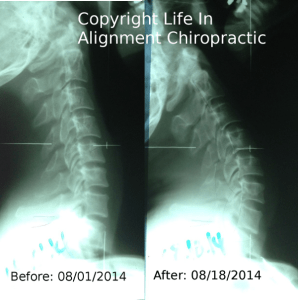 Before his neck correction, this patient could not fully look up, reducing the health of his joints.