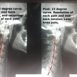 Changes in neck alignment after upper cervical chiropractic at Life In Alignment.