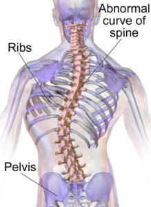 Scoliosis Thoracolumbar Illustration
