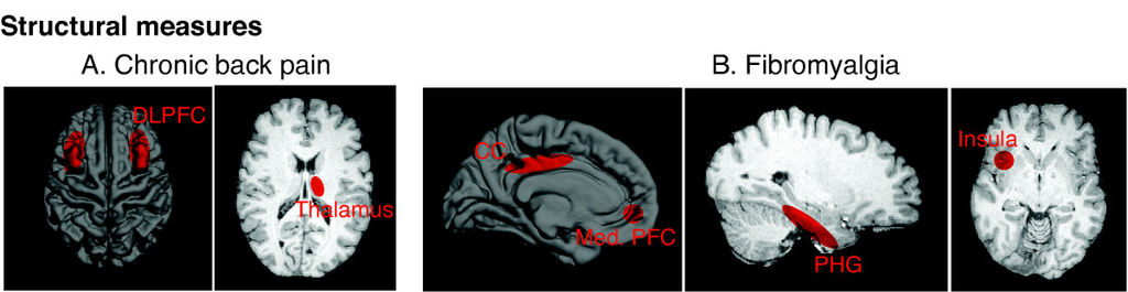 Brain scans of changes in chronic pain