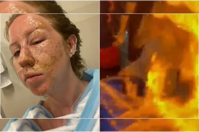 Mesero le quema el rostro a una mujer en Cancún