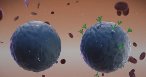 The Pathway To A Breakthrough- Scientists Prompt Immune System To Fight Cancer