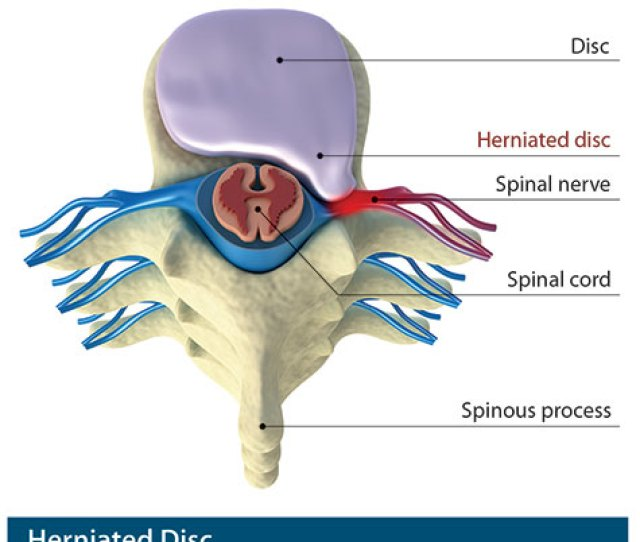 Herniated