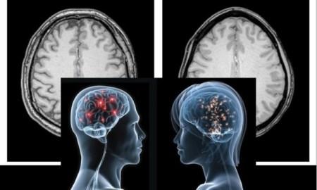 agyszövetet