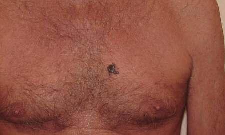 bőrrák