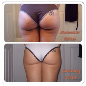 reduction cellulite avant apres