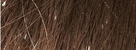 Nits on Strands of Hair