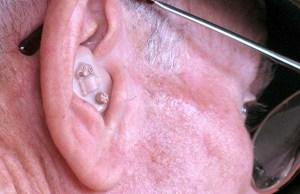 Hearing aid. Pic: mike krzeszak