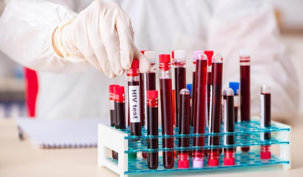 Confirman médicos la segunda curación en el mundo de una persona con VIH