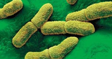 Detectan primer caso de peste bubónica en cinco años en California