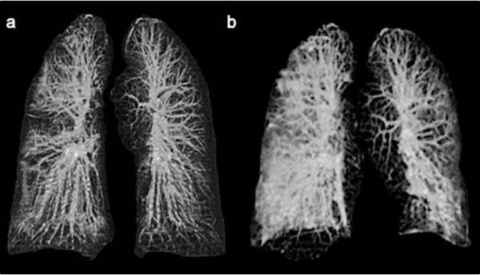 IMAGEN muestra el daño que puede causar el coronavirus a los pulmones
