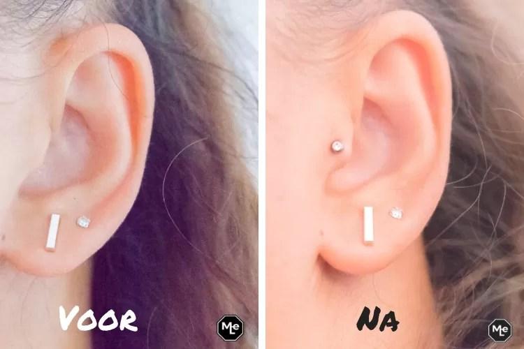 mijn nieuwe tragus piercing- voor en na