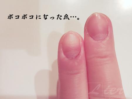 爪がボコボコになる原因は…乾燥・手荒れ!キレイな爪を取り戻す方法