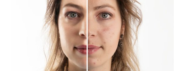 ニキビや肌荒れ改善に注目のノンコメドジェニックテスト済み化粧品とは?
