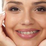 歯列矯正で美しい歯を手に入れたい!メリットデメリットを全て教えます!