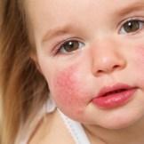 赤ら顔専門化粧水で原因の薄い皮膚を改善しよう!【赤ら顔のタイプ別対策法】