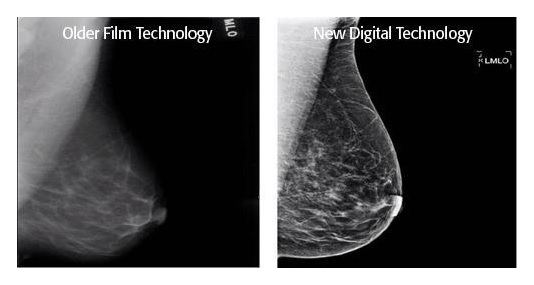 digital mammagraphy