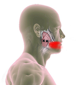 masseter-trigger-point-tooth-pain