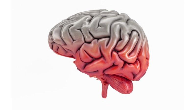 腦供血不足的3個症狀,記住這3個方法,改善頭部供血