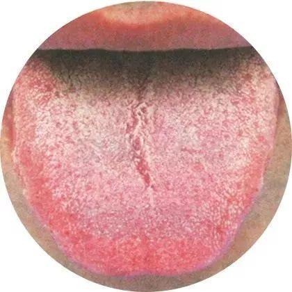 濕氣重的症狀 - 清晨起床看舌苔