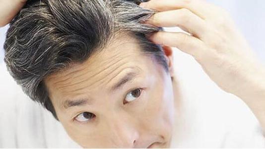 年紀輕輕,白髮卻越來越多,都是因為這4個原因!3種方法改善!