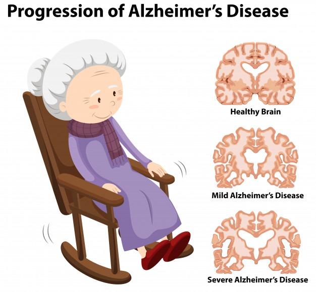 老年癡呆症病人的大腦變化