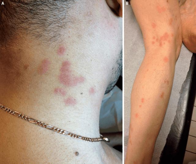 臭蟲引起的線狀分佈的紅色斑丘疹