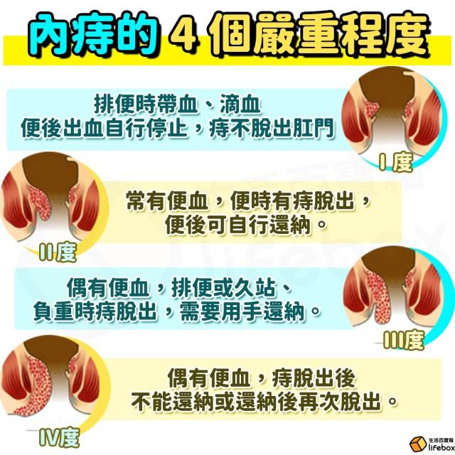痔瘡-內痔的4個嚴重程度