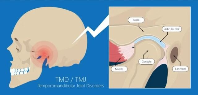 下巴咔咔響-顳下頜功能紊亂