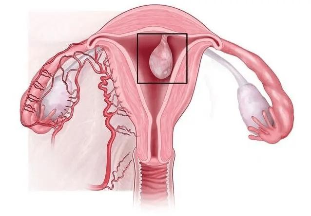 子宮內膜息肉