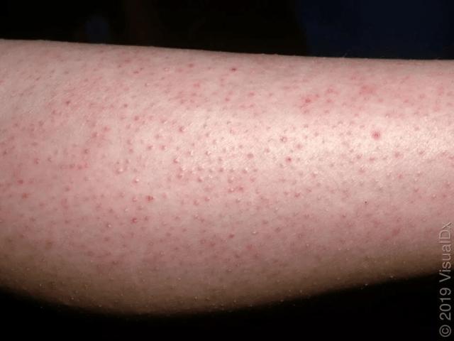 毛周角化病-雞皮膚