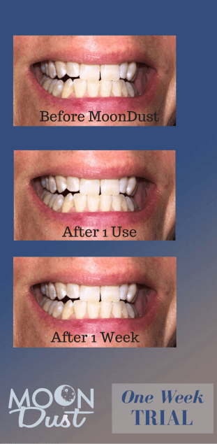 Moon Dust Tooth Powder Before and After Trial