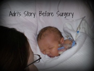 Before Open Heart SurgerySurgery